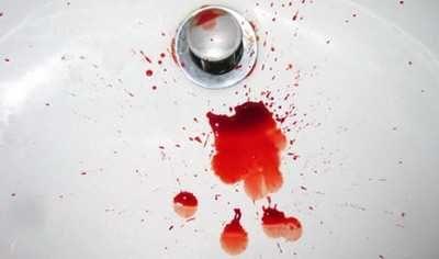Кровь - симптом геморроя