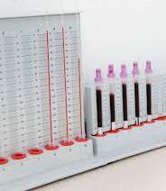 Аналіз на ферменти підшлункової залози
