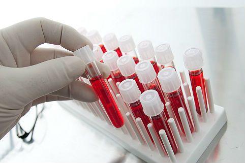Анализы крови на описторхоз (ифа, биохимический), антитела (ат)