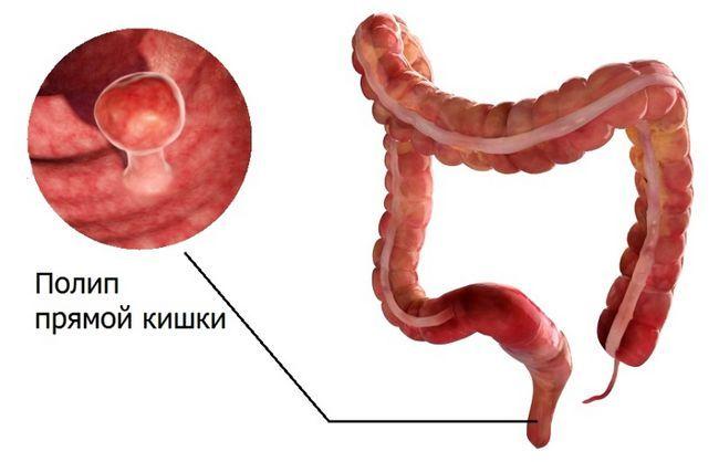 Анальные фиброзные полипы