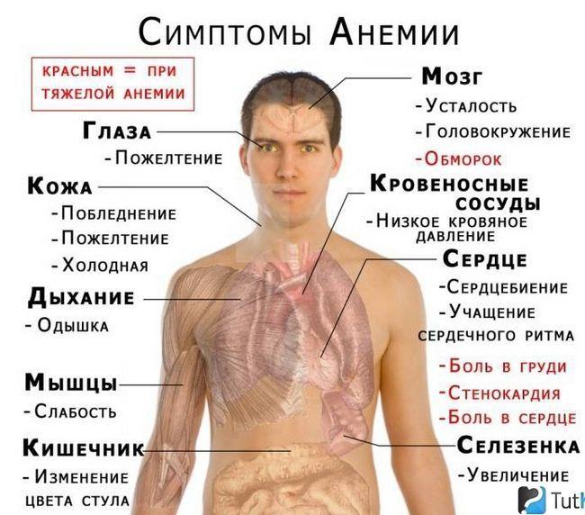 Анемия при глистной инвазии