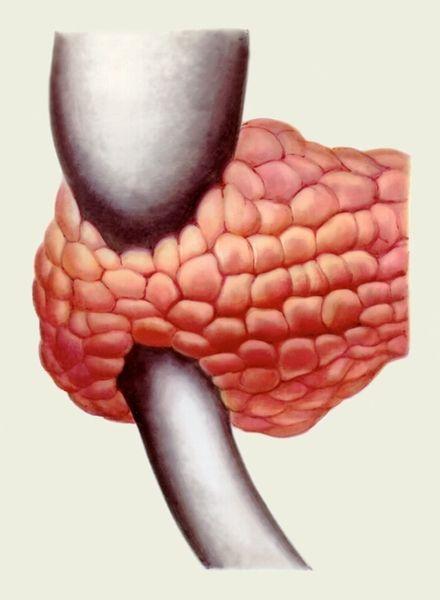 Аномалії розвитку підшлункової залози