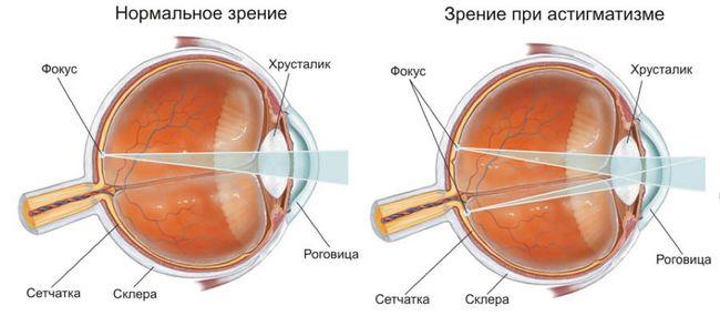 Аномалия рефракции глаза, причины и лечение
