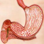 Антрум-гастрит лечение и диета