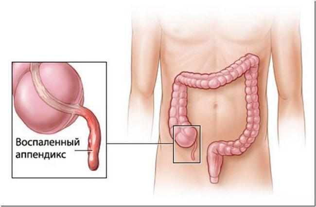 Аппендицит — этапы операции, осложнения, особенности восстановительного периода