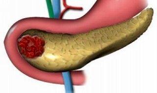 Асептический панкреонекроз