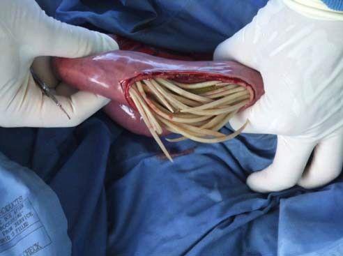 Аскариды в кишечнике, желудке, тонкой и толстой кишке