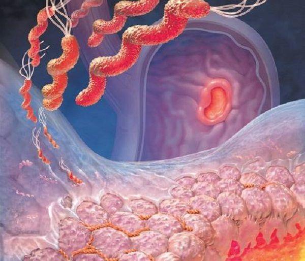 Ассоциированный гастродуоденит