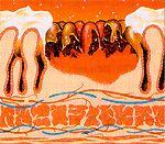 Бактериальный хеликобактерный гастрит