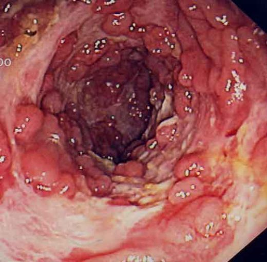 Болезнь крона толстой кишки, симптомы и лечение