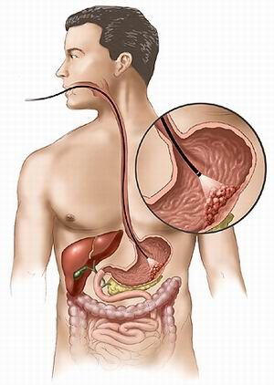 Болезни желудка и поджелудочной железы, панкреатит, боли - лечение, фото
