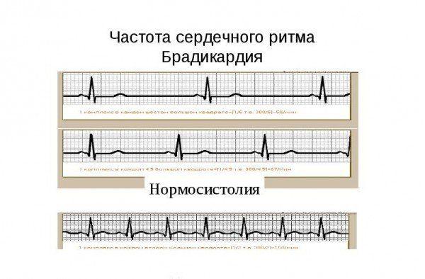 Брадикардия теперь не страшна: как сохранить здоровье сердца доступными способами