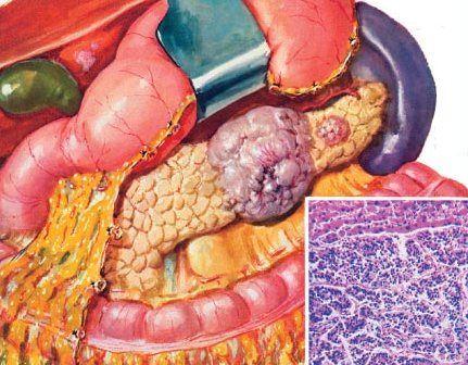 C-R головки поджелудочной железы