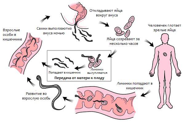 Частое заражение (глистная инвазия) острицами (энтеробиозом) человека