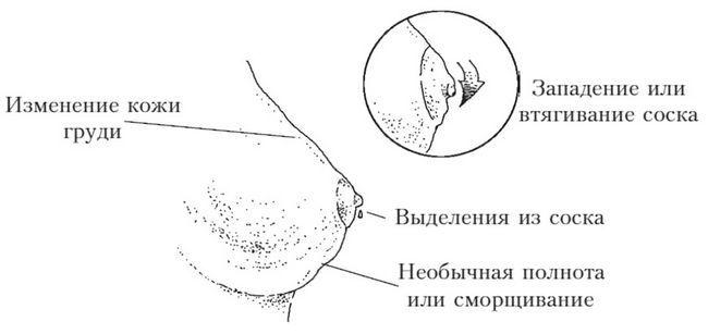 Фибромиома может достигать огромных размеров и нарушать симметричность груди