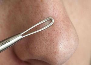 Чем и как убрать черные точки на носу: эффективные средства, народные методы