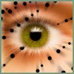 Черные точки перед глазами: причины и лечение