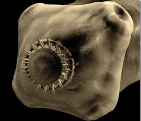 Червь-паразит свиной цепень, заболевание тениоз у человека