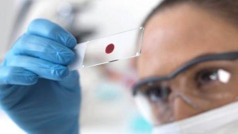 Что показывает анализ крови на хгч?