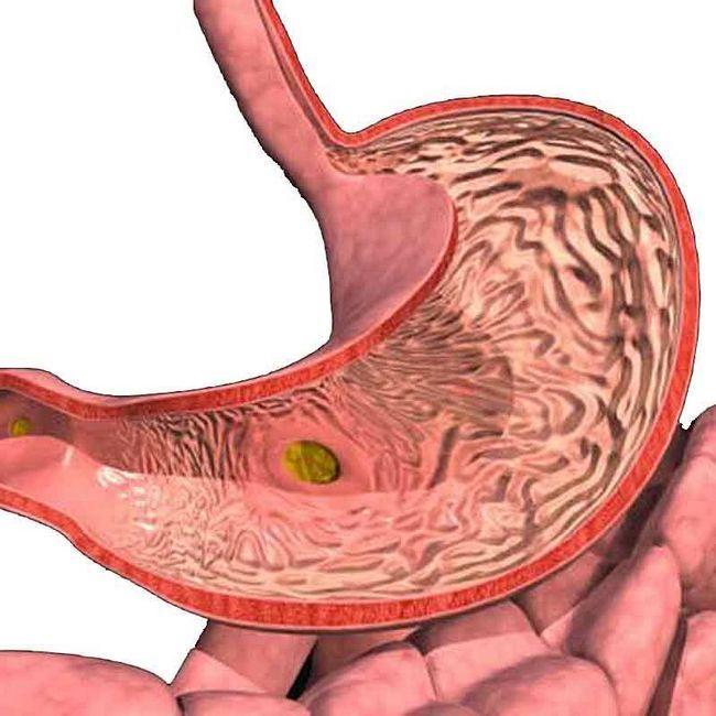 Что такое гастрит желудка, его виды, причины возникновения, признаки, симптомы, диагностика, лечение