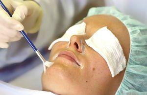 Процедура срединного пилинга кожи лица