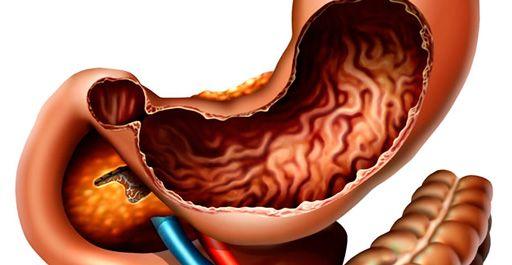 Что такое хронический анацидный гастрит, его симптомы и лечение