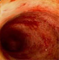 Що таке ентероколіт кишечника?