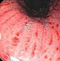 Что такое поверхностный гастродуоденит: симптомы, причины и лечение