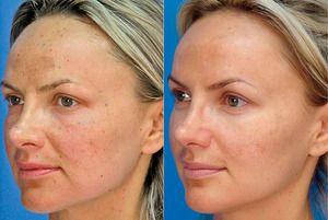 Положительные стороны химического поверхностного пилинга для омоложения лица