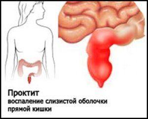 Що таке проктит кишечника?