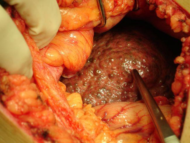 Цирроз поджелудочной железы