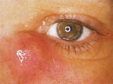 Дакриоцистит — симптомы, лечение, дакриоцистит у новорожденных