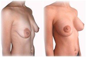 Давайте посчитаем какова цена подтяжки грудных желез в разных клиниках и странах