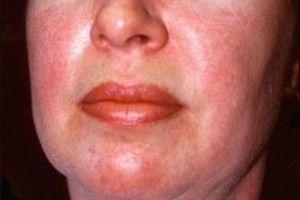 dermatomiozit