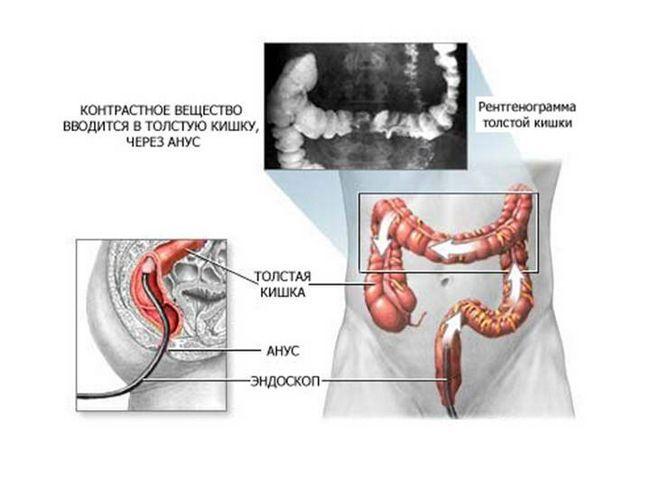 Дифференциальный диагноз болезни Крона