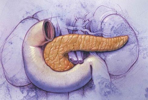 Диффузный фиброз, фиброзно-жировые изменения поджелудочной железы, симптомы и лечение