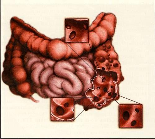 Дивертикулёз толстого кишечника