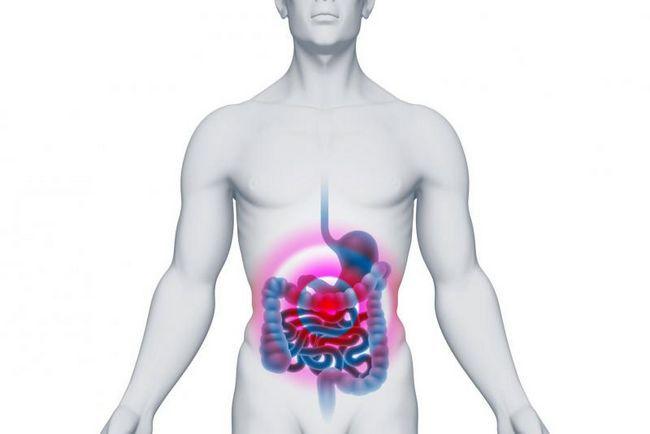 Полип - это опухоль