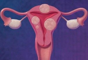 Фиброма матки — причины, симптомы, диагностика и лечение