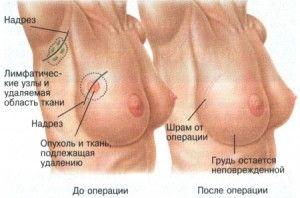 Симптомы рака груди по формам