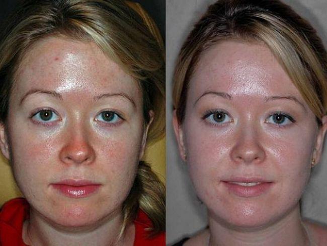 Результат до и после проведения фруктового пилинга