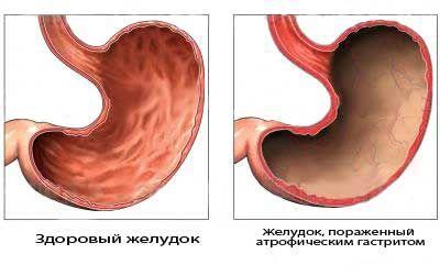 Гастрит и рак желудка