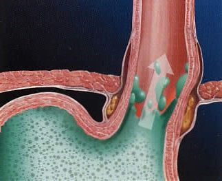 Желчный рефлюкс-гастрит - лечение