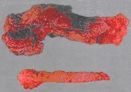 Геморрагический панкреонекроз и его острая форма