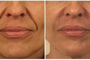 Гиалуроновая кислота от носогубных складок: фото до и после