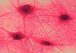 Гіперплазія, гіпоплазія, гіпертрофія підшлункової залози