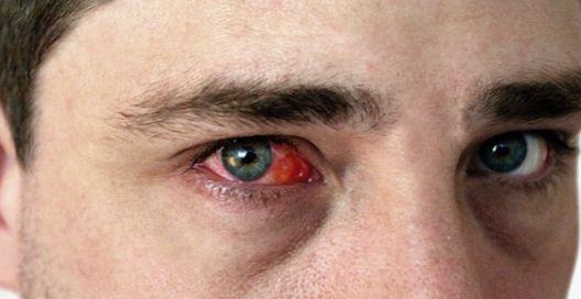 Грибковый конъюнктивит (офтальмомикоз) — истоки болезни и методы лечения