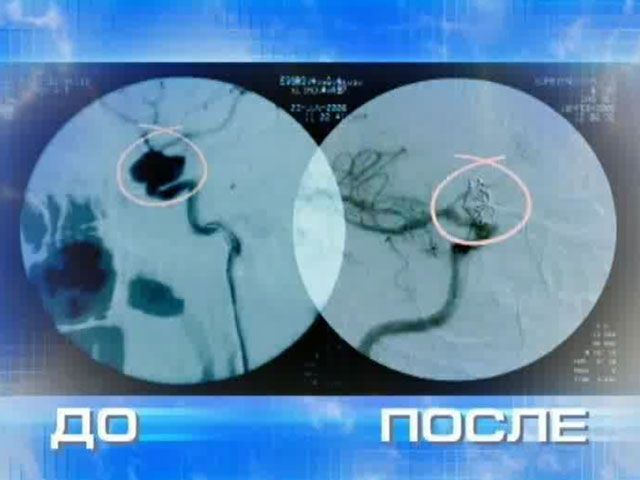 Хирургическое лечение аневризмы мозга: два вида операции, осложнения, прогноз