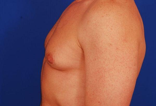 Хирургическое удаление гинекомастии