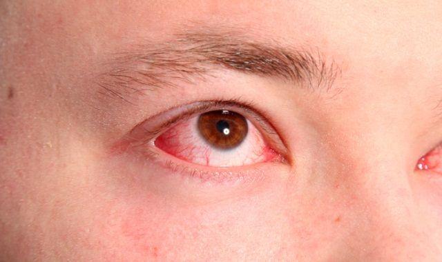 Хламидиоз глаз (хламидийный конъюнктивит)